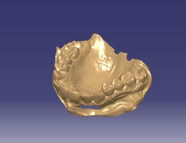 thiết kế ngược hàm răng